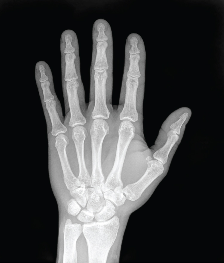 Ask An Orthopedist | Fractured Finger